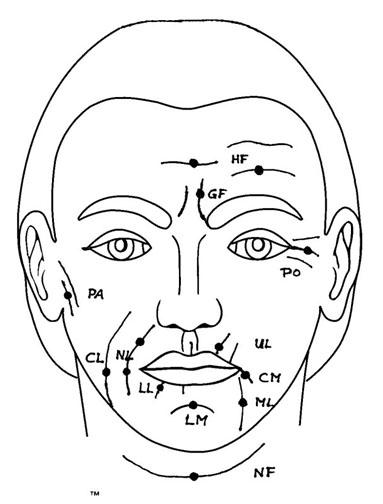 Средние морщины на лице схема