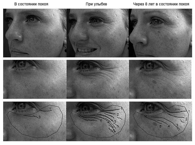 Причины возникновения борозд на лице и передовые косметологические методики их лечения