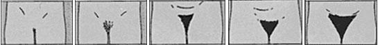 Нежелательные волосы в деликатных зонах - схема роста лобковых волос