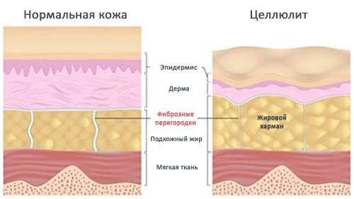 Причины возникновения целлюлита, методики лечения на аппаратах VASER, Thermage и Z Wave