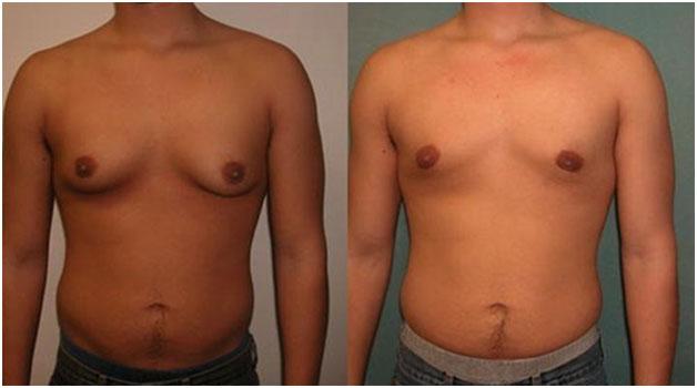 Гинекомастия у мужчин, способы лечения заболевания, аппаратная методика VASER