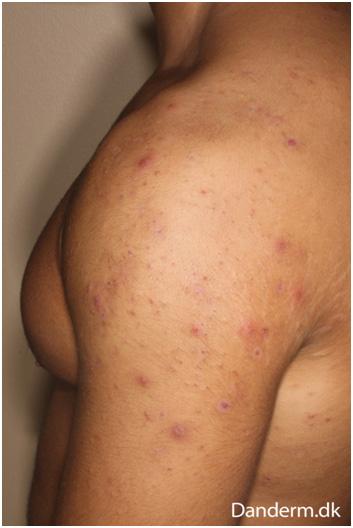 Акне на плече и спине из-за стероидов