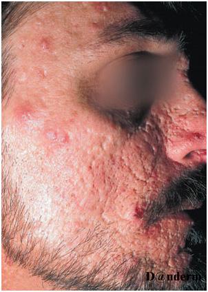 Рубцы на лице после заживления акне