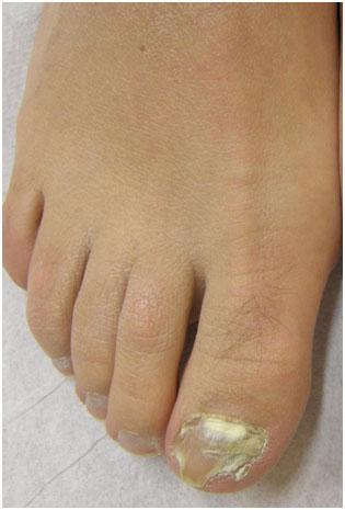 Грибковые инфекции ногтей, аппаратная методика лечения на аппарате Acupulse