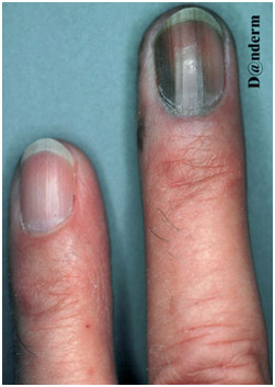 Акральная лентигиозная меланома под ногтем
