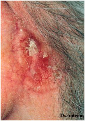 Немеланоцитарный рак кожи - базально-клеточная карцинома