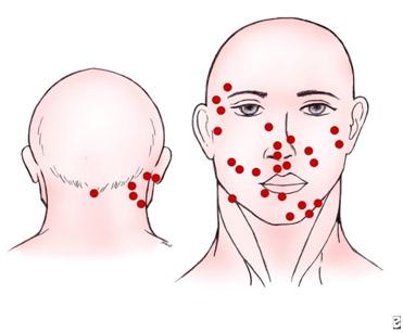 Немеланоцитарный рак кожи - локализация карциномы Меркеля