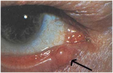 Немеланоцитарный рак кожи - карцинома сальных желез