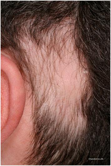 Заболевания волос - очаговая алопеция