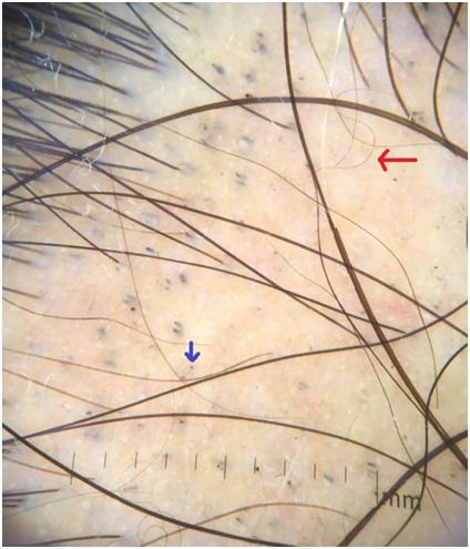 Заболевания волос - признаки очаговой алопеции