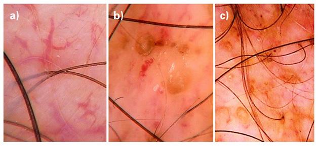 Заболевания волос - признаки алопеции при волчанке