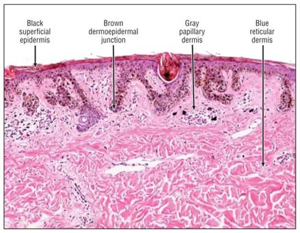 Критерии точности дерматоскопической диагностики: от виртуальных процентов к реальным цифрам