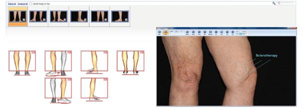 FotoFinder представляет решения, разработанные для флебологии
