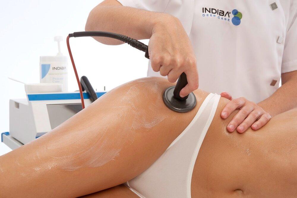INDIBA заказ Premium Aesthetics, премиум оборудование для эстетической косметологии