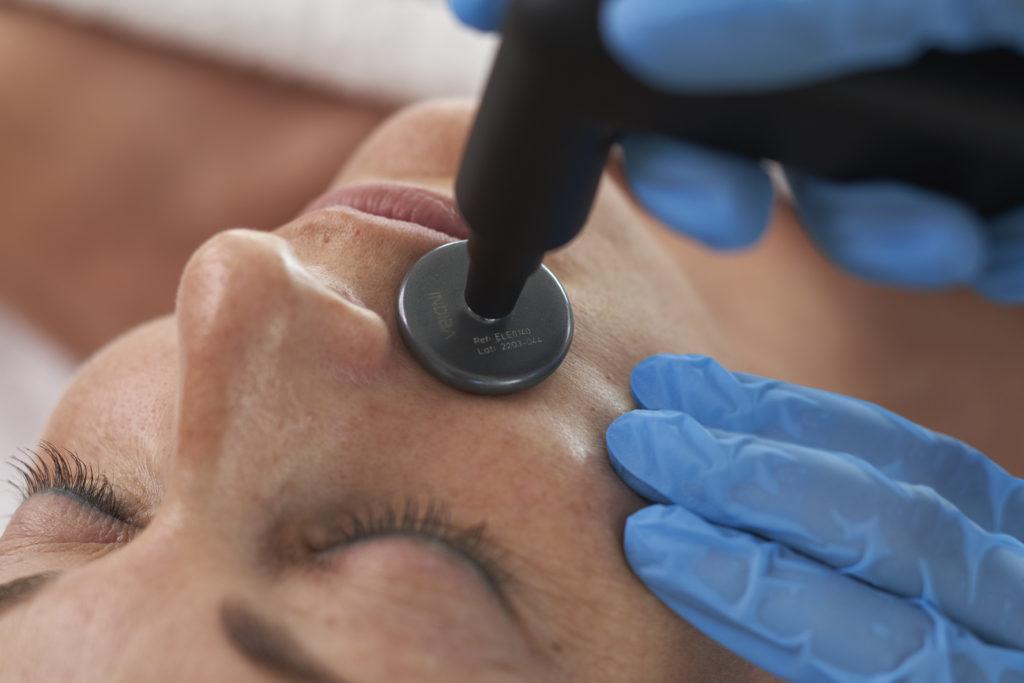 INDIBA лучшие цены Premium Aesthetics, премиум оборудование для эстетической косметологии