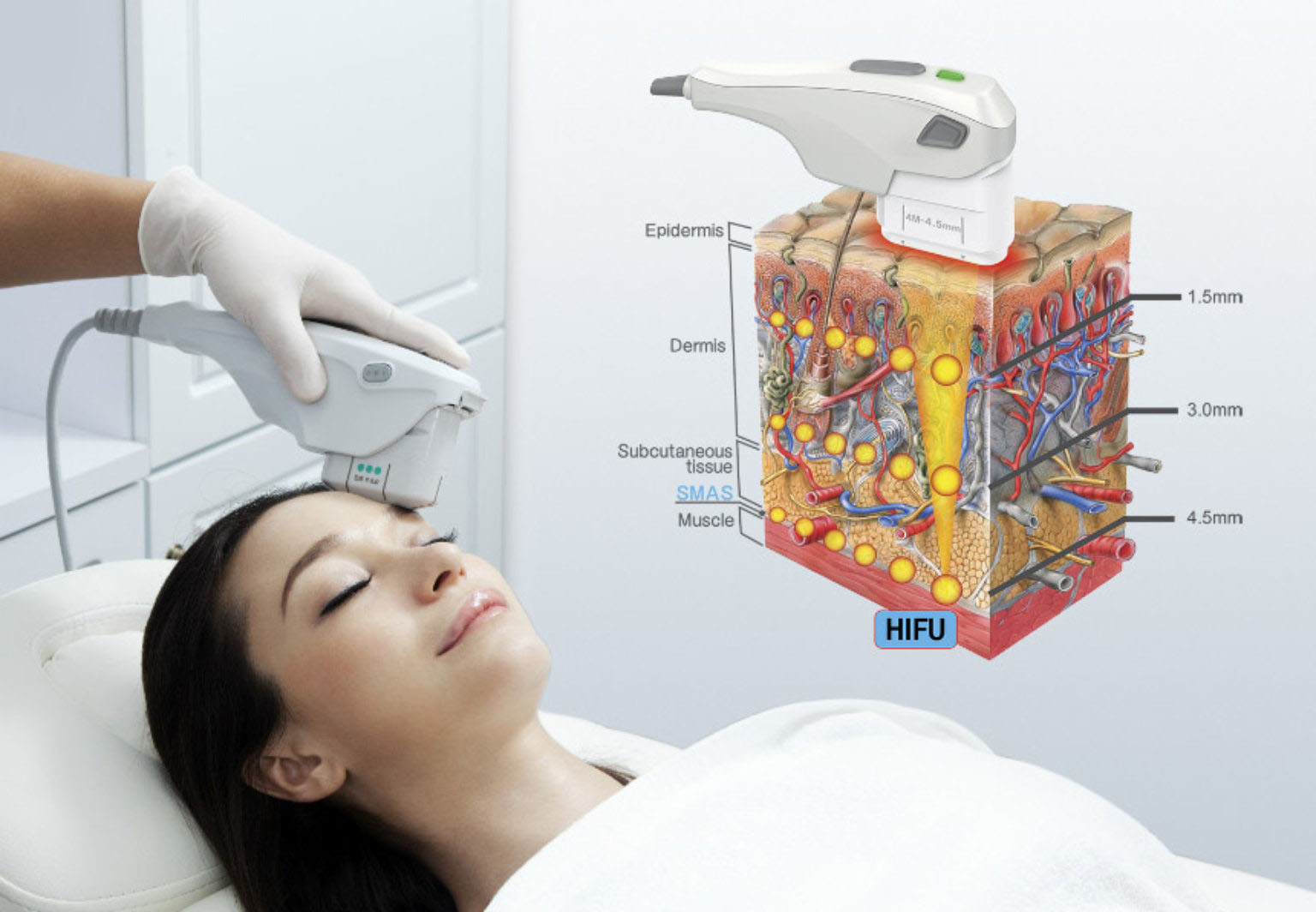 Чего ожидать от SMAS-лифтинга на аппарате ультразвуковой HIFU-терапии?